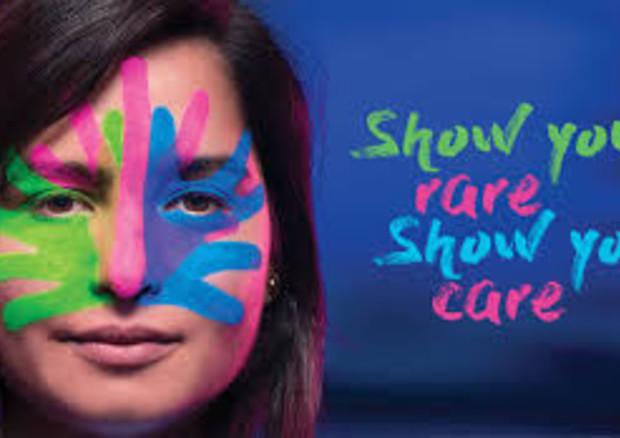 Giornata malattie rare: mostra che ci sei, al fianco di chi è raro